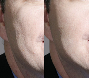 contour cheek and jaw