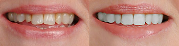 fix lips