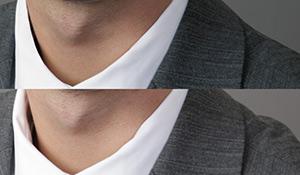 fix shirt and collar